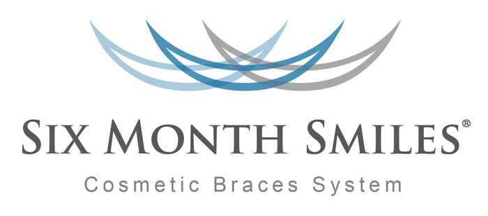 Six Month Smiles Braces & Retainer