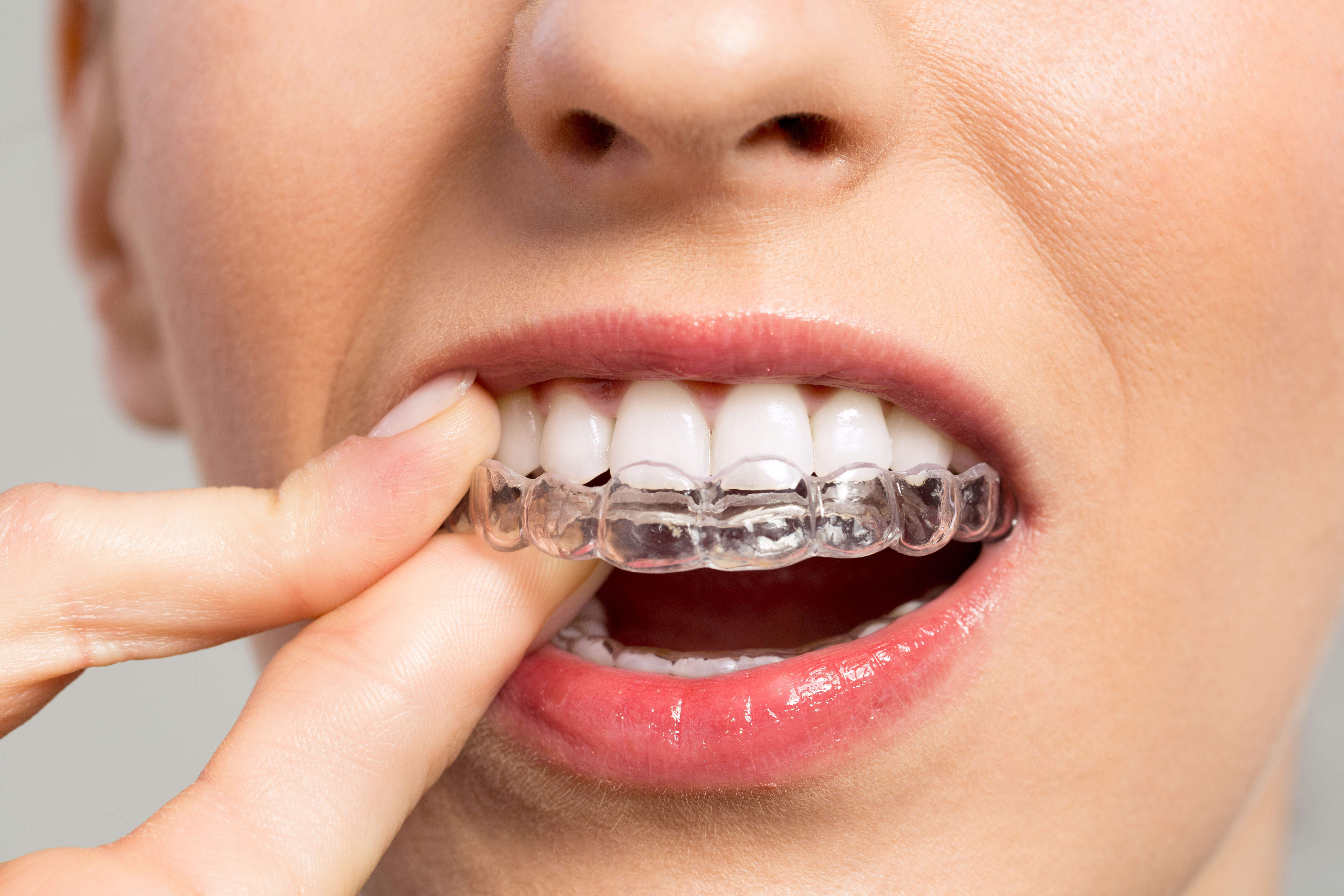 Are invisible braces right for me dental wellness phoenixville by solutioingenieria Images