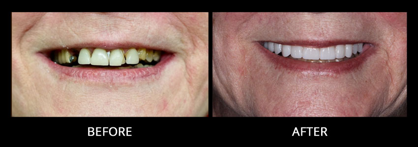 cosmetic-dentistry-example-1