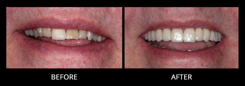 cosmetic-dentistry-example-2