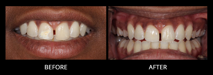 cosmetic-dentistry-example-3