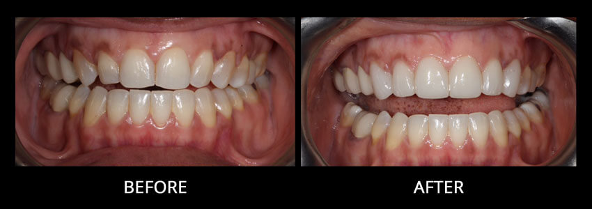 cosmetic-dentistry-example-4
